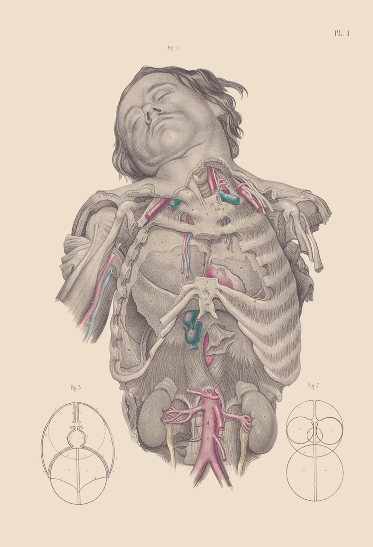 15 Vintage Medical Illustrations That Reveal the Horrors of 19th-Century Surgery
