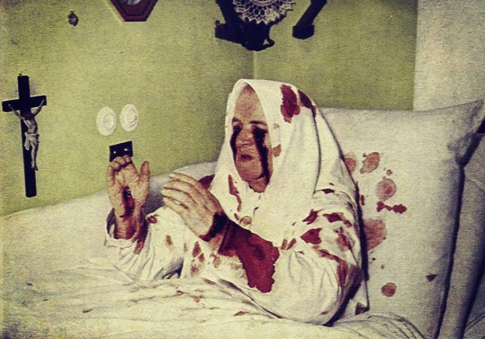 Divine Suffering: 7 People Who Claimed to Have the Stigmata